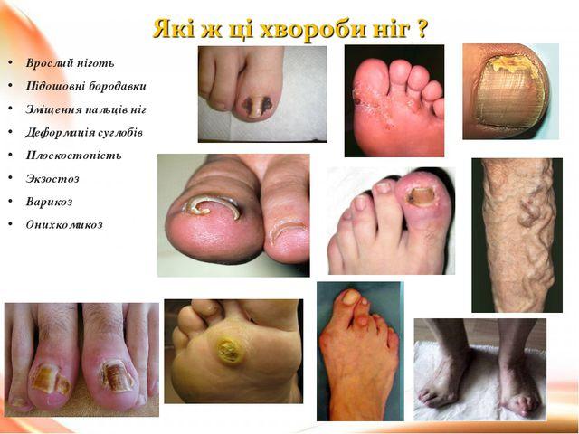 Врослий ніготь Підошовні бородавки Зміщення пальців ніг Деформація суглобів П...