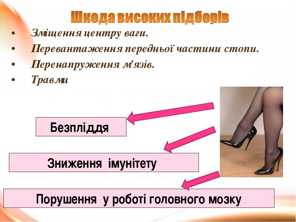 Зміщення центру ваги. Перевантаження передньої частини стопи. Перенапруження...