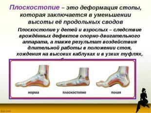 Плоскостопие – это деформация стопы, которая заключается в уменьшении высоты