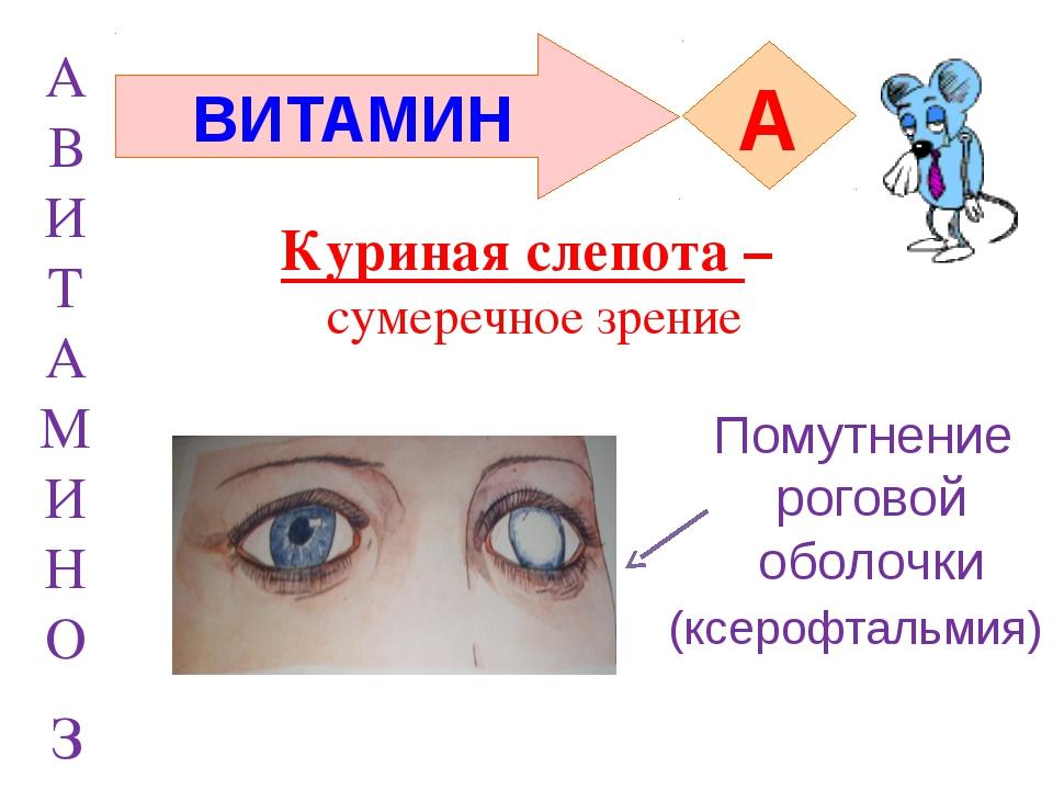 А В И Т А М И Н О з ВИТАМИН A (ксерофтальмия) Помутнение роговой оболочки Кур...