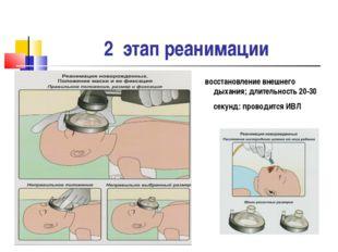 2 этап реанимации восстановление внешнего дыхания; длительность 20-30 секунд: