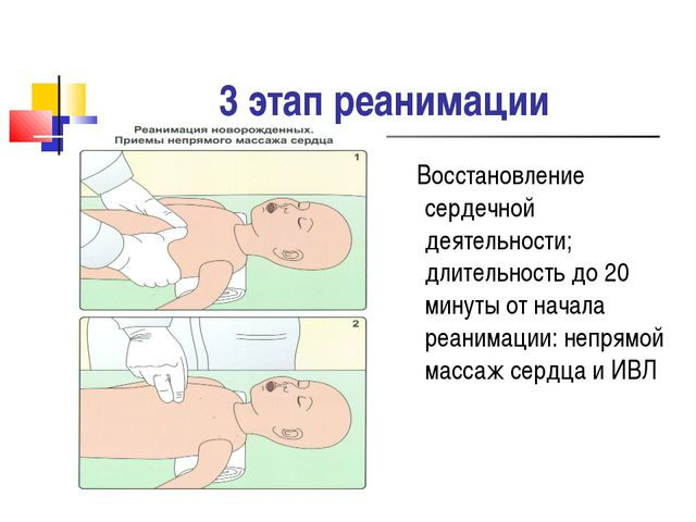 3 этап реанимации Восстановление сердечной деятельности; длительность до 20 м...