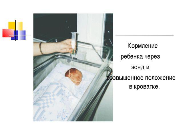 Кормление ребенка через зонд и возвышенное положение в кроватке.