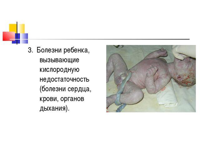 3. Болезни ребенка, вызывающие кислородную недостаточность (болезни сердца, к...