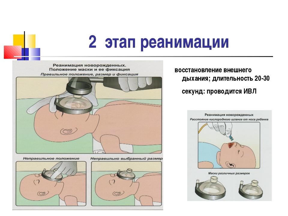 2 этап реанимации восстановление внешнего дыхания; длительность 20-30 секунд:...