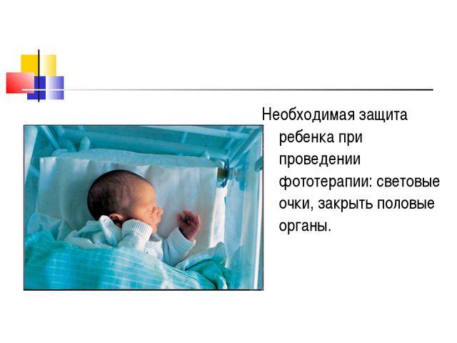 Необходимая защита ребенка при проведении фототерапии: световые очки, закрыть...