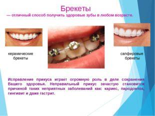 Кариесогенные факторы Остатки пищи образуется зубной налет, который создает