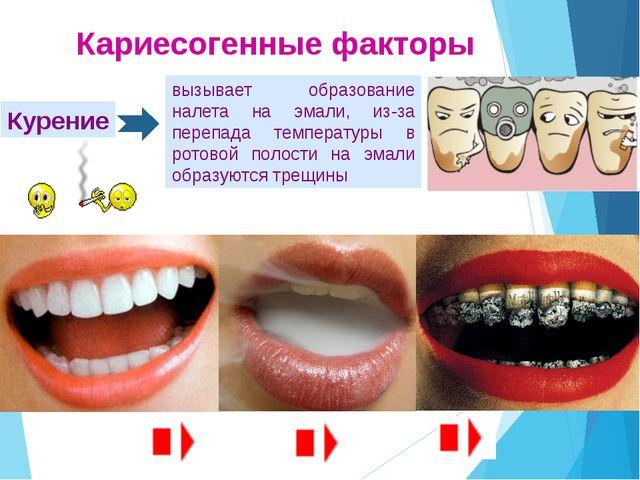 Этапы развития кариеса Изменение внешнего вида эмали зуба (становится тусклая...
