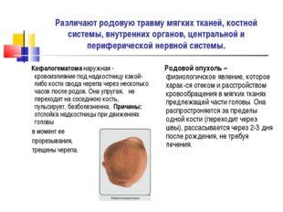 Различают родовую травму мягких тканей, костной системы, внутренних органов,