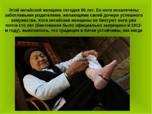 Этой китайской женщине сегодня 86 лет. Ее ноги искалечены заботливыми родител