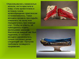 Образовывались окаменелые мозоли; ногти врастали в кожу; стопа кровоточила и