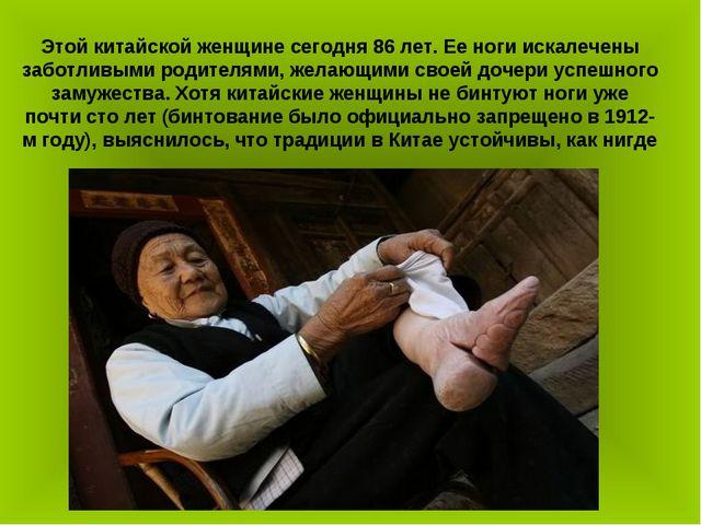 Этой китайской женщине сегодня 86 лет. Ее ноги искалечены заботливыми родител...