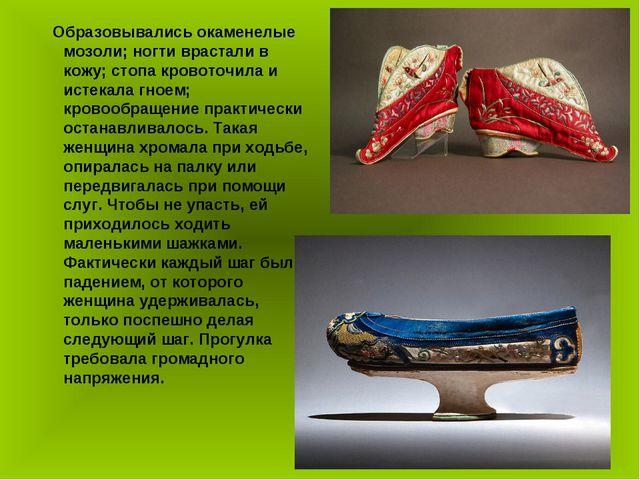 Образовывались окаменелые мозоли; ногти врастали в кожу; стопа кровоточила и...