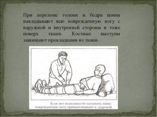 При переломе голени и бедра шины накладывают всю поврежденную ногу с наружной