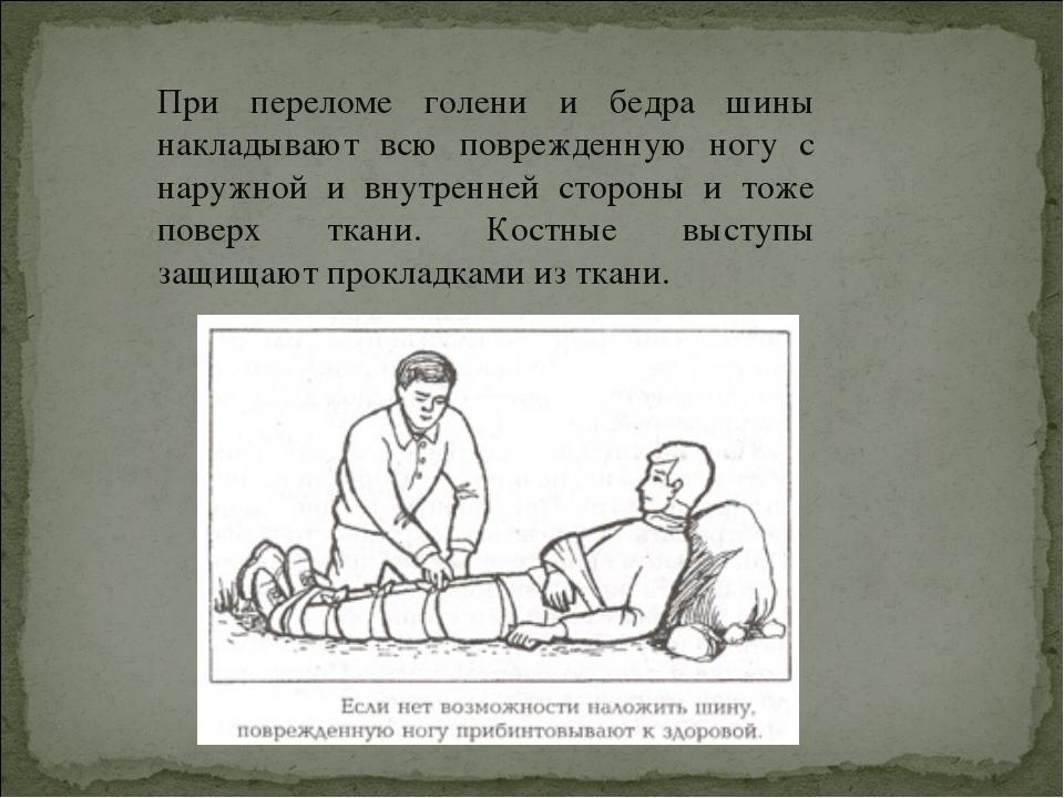 При переломе голени и бедра шины накладывают всю поврежденную ногу с наружной...