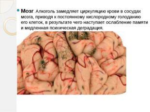 Мозг. Алкоголь замедляет циркуляцию крови в сосудах мозга, приводя к постоянн