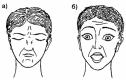 Рис 4. Зажмуривание глаз