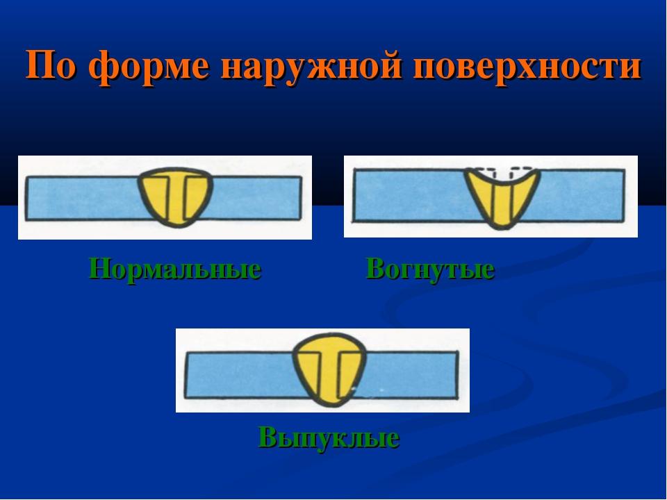 По форме наружной поверхности Нормальные Вогнутые Выпуклые