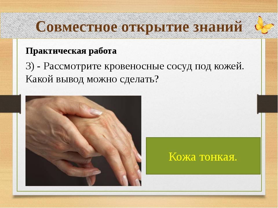 Совместное открытие знаний Практическая работа 3) - Рассмотрите кровеносные...