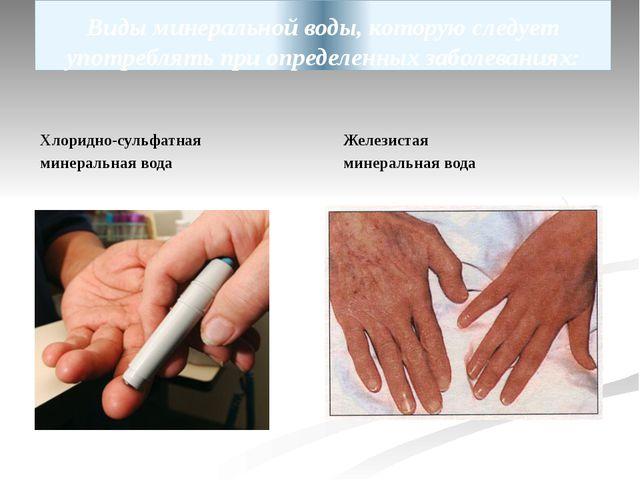 Виды минеральной воды, которую следует употреблять при определенных заболеван...