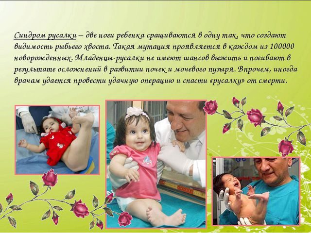 Синдром русалки– две ноги ребенка сращиваются в одну так, что создают видим...