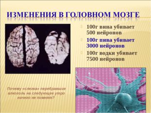 100г вина убивает 500 нейронов 100г пива убивает 3000 нейронов 100г водки уби