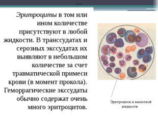 Эритроциты в том или ином количестве присутствуют в любой жидкости. В транссу