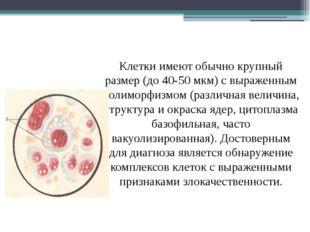 Клетки имеют обычно крупный размер (до 40-50 мкм) с выраженным полиморфизмом