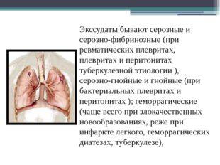 Экссудаты бывают серозные и серозно-фибринозные (при ревматических плевритах,