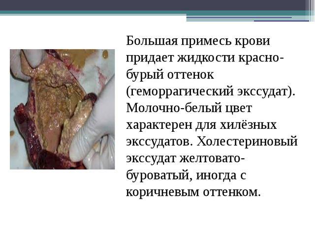 Большая примесь крови придает жидкости красно-бурый оттенок (геморрагический...