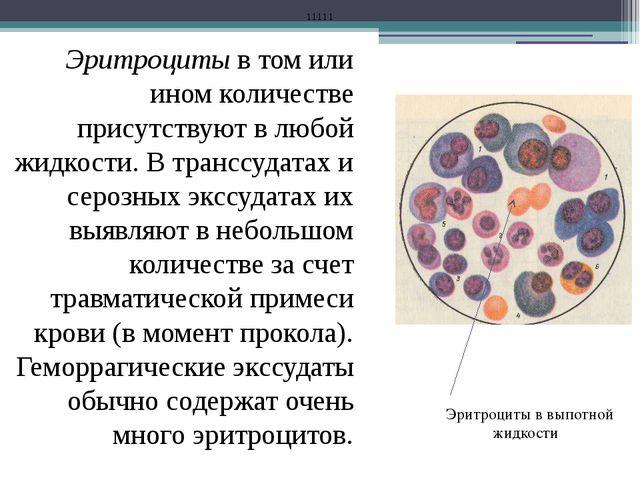 Эритроциты в том или ином количестве присутствуют в любой жидкости. В транссу...