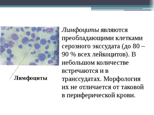 Лимфоциты являются преобладающими клетками серозного экссудата (до 80 – 90 %...