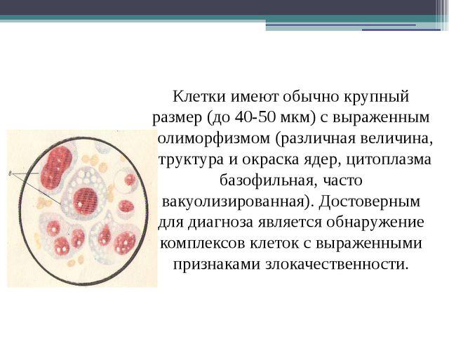 Клетки имеют обычно крупный размер (до 40-50 мкм) с выраженным полиморфизмом...