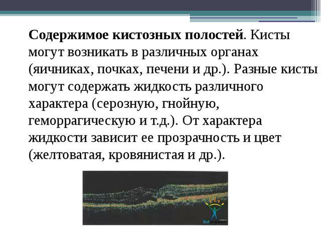 Содержимое кистозных полостей. Кисты могут возникать в различных органах (яич...