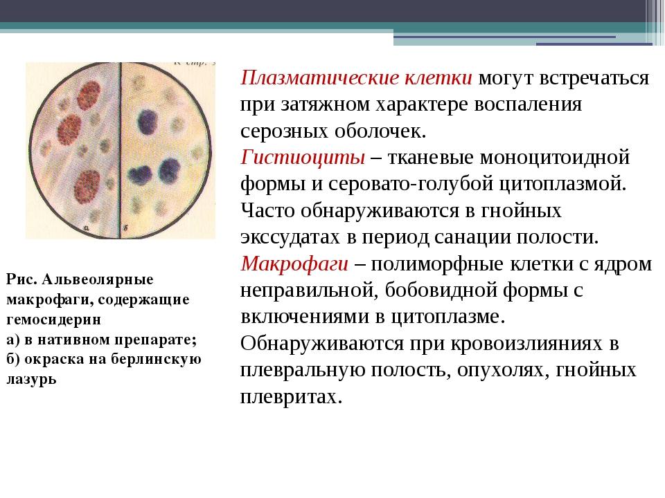 Плазматические клетки могут встречаться при затяжном характере воспаления сер...