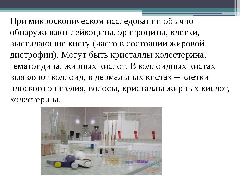При микроскопическом исследовании обычно обнаруживают лейкоциты, эритроциты,...