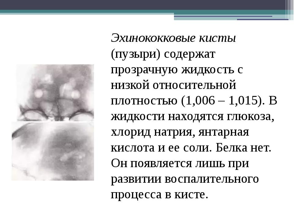 Эхинококковые кисты (пузыри) содержат прозрачную жидкость с низкой относитель...