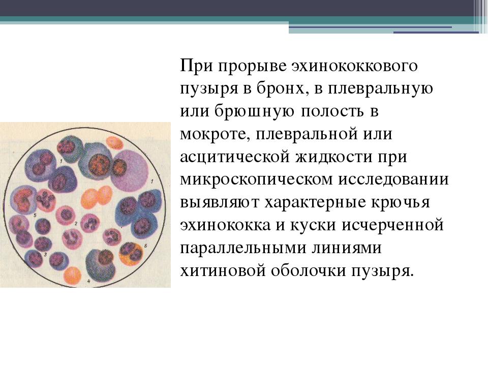 При прорыве эхинококкового пузыря в бронх, в плевральную или брюшную полость...