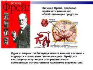 Зигмунд Фрейд, пробовал применять кокаин как обезболивающее средство Один из