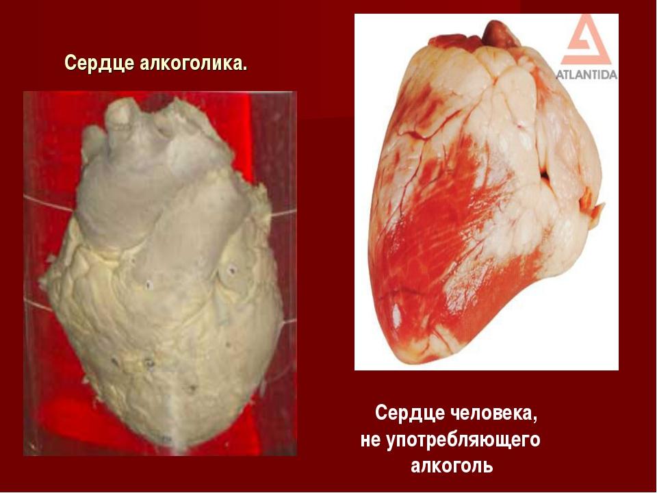 Сердце алкоголика. Cердце человека, не употребляющего алкоголь