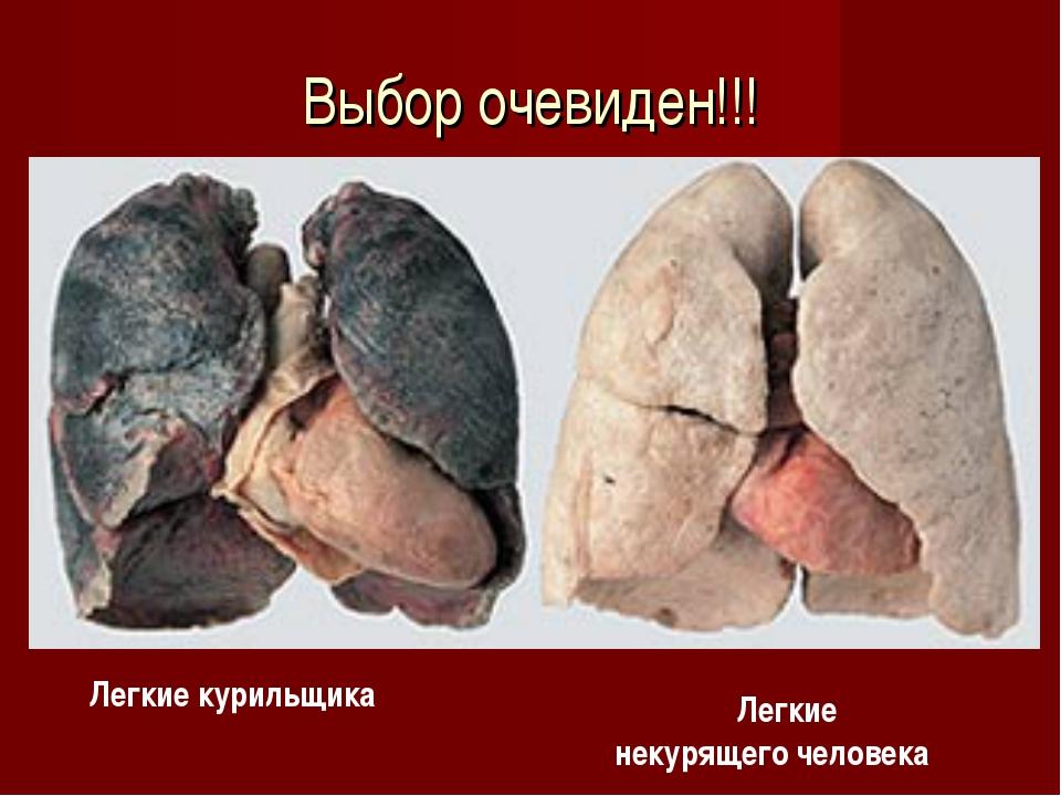 Выбор очевиден!!! Легкие курильщика Легкие некурящего человека