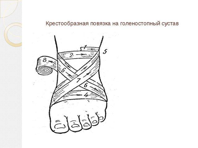 Крестообразная повязка на голеностопный сустав