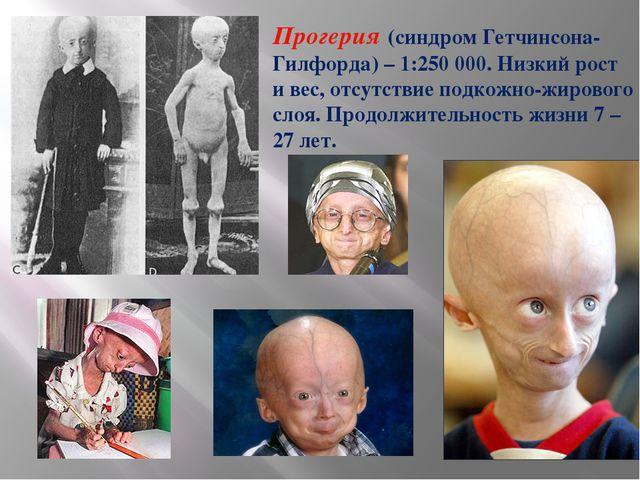 Прогерия (синдром Гетчинсона-Гилфорда) – 1:250 000. Низкий рост и вес, отсутс...