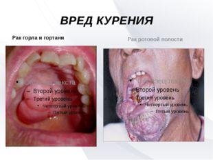 ВРЕД КУРЕНИЯ Рак горла и гортани Рак ротовой полости