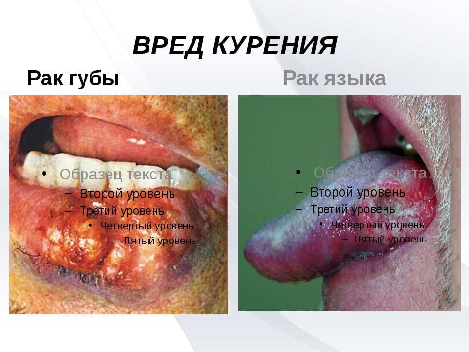 ВРЕД КУРЕНИЯ Рак губы Рак языка