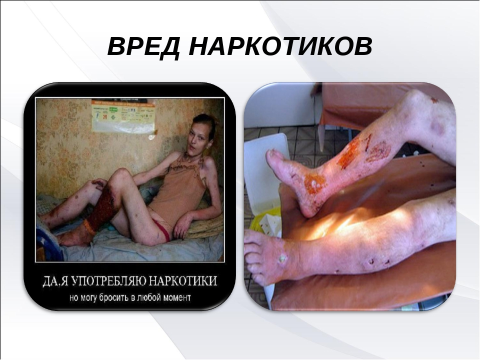 Вред наркомании картинках
