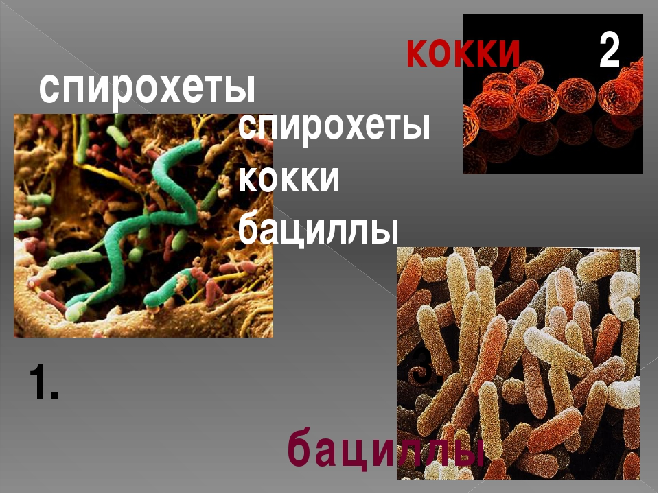 кокки бациллы спирохеты спирохеты кокки бациллы 1. 2. 3.