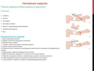 Наложение закрутки Показание: временная остановка артериального кровотечения