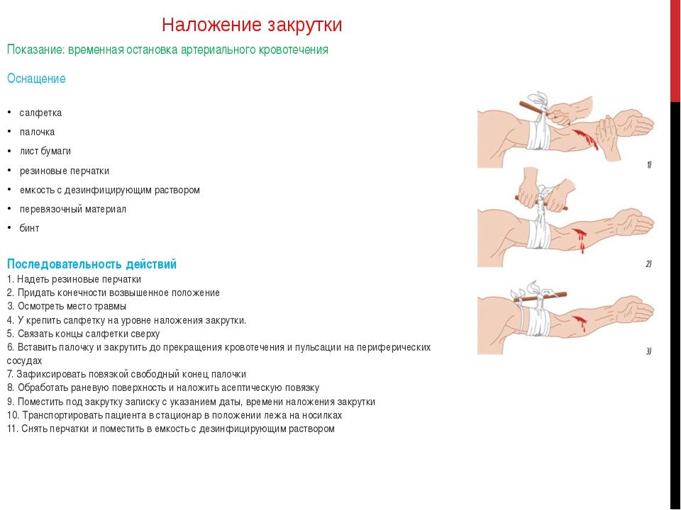 Наложение закрутки Показание: временная остановка артериального кровотечения...