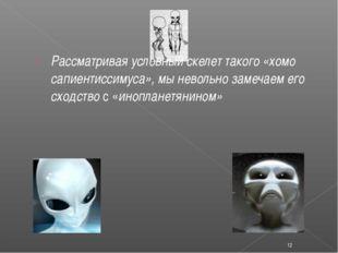 Рассматривая условный скелет такого «хомо сапиентиссимуса», мы невольно заме